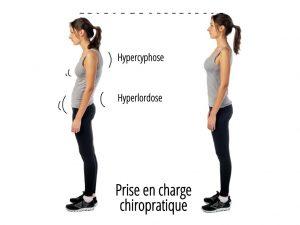 Defaut de posture